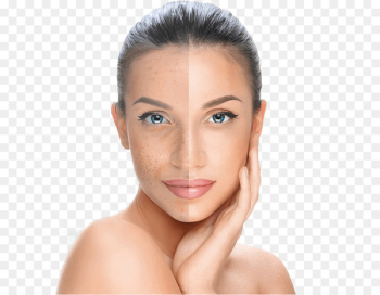 Chemical peel Facial Skin Exfoliation Surgery - mulberry  png image transparent background