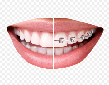 Dental braces Clear aligners Orthodontics Tooth Dentistry - Teeth With Braces  png image transparent background